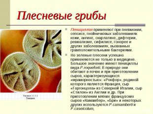 Пенициллин применяют при пневмонии, сепсисе, гнойничковых заболеваниях кожи, анг