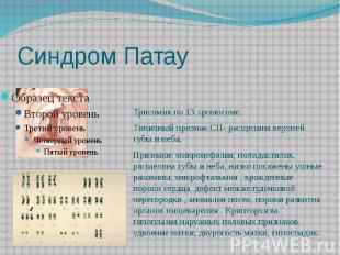Синдром Патау Трисомия по 13 хромосоме. Типичный признак СП- расщелина верхней г