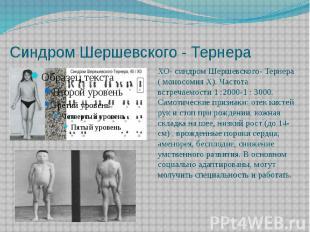 Синдром Шершевского - Тернера ХО- синдром Шершевского- Тернера ( моносомия Х). Ч