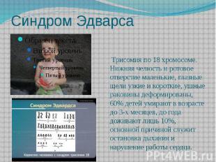 Синдром Эдварса Трисомия по 18 хромосоме. Нижняя челюсть и ротовое отверст