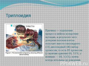 Триплоидия Причина— нарушение процессамейозавследствие мутации