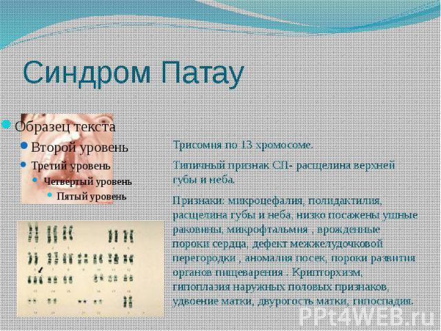 Синдром Патау Трисомия по 13 хромосоме. Типичный признак СП- расщелина верхней губы и неба. Признаки: микроцефалия, полидактилия, расщелина губы и неба, низко посажены ушные раковины, микрофтальмия , врожденные пороки сердца, дефект межжелудочковой …