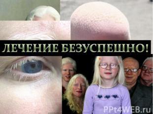 Альбинизм- нарушение аминокислотного метаболизма. Врождённое отсутствие пигмента