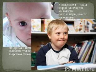 Синдром Да уна (трисомия X по 21 хромосоме ) — одна из форм геномной патологии,