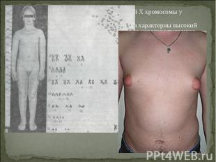 Болезнь Кляйнфельтера- наличие лишней X хромосомы у мужчин (генотип – XXY). Боле