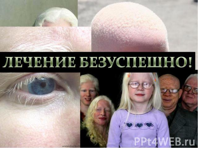 Альбинизм- нарушение аминокислотного метаболизма. Врождённое отсутствие пигмента кожи, волос, радужной и пигментной оболочек глаза. Причиной альбинизма является отсутствие (или блокада) фермента тирозиназы, необходимой для нормального синтеза мелани…