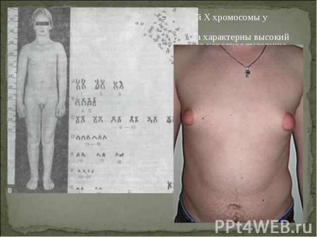 Болезнь Кляйнфельтера- наличие лишней X хромосомы у мужчин (генотип – XXY). Болезнь Кляйнфельтера- наличие лишней X хромосомы у мужчин (генотип – XXY). Для мужчин с синдромом Клайнфельтера характерны высокий рост, длинные конечности и относительно к…