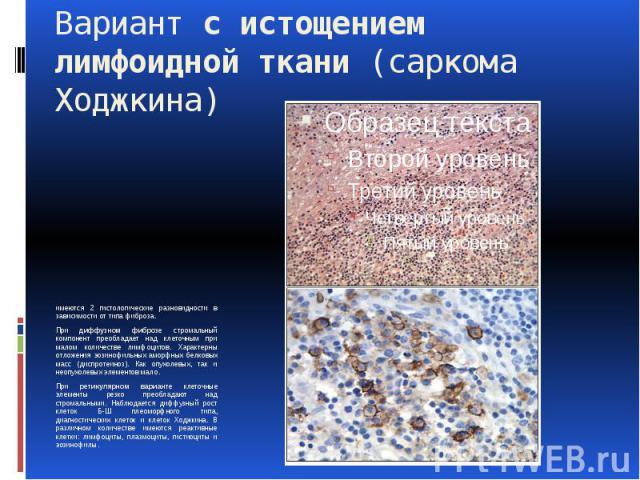 Вариант с истощением лимфоидной ткани (саркома Ходжкина) имеются 2 гистологические разновидности в зависимости от типа фиброза. При диффузном фиброзе стромальный компонент преобладает над клеточным при малом количестве лимфоцитов. Характерны отложен…