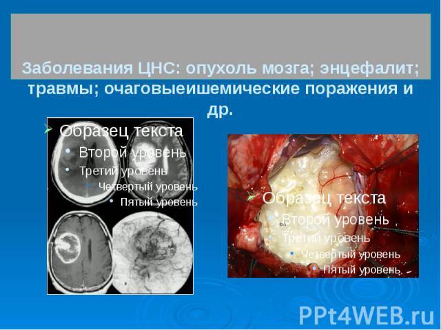 Заболевания ЦНС: опухоль мозга; энцефалит; травмы; очаговыеишемические поражения и др.