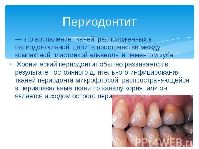 Периодонтит — это воспаление тканей, расположенных в периодонтальной щели, в пространстве между компактной пластинкой альвеолы и цементом зуба. Хронический периодонтит обычно развивается в результате постоянного длительного инфицирования тканей пери…