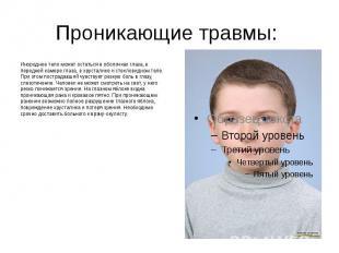 Проникающие травмы: Инородное тело может остаться в оболочках глаза, в передней