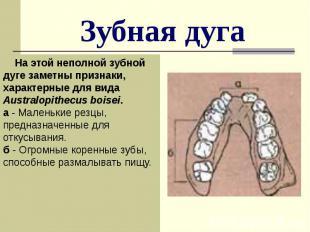 Зубная дуга На этой неполной зубной дуге заметны признаки, характерные для вида
