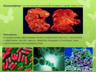 Пиелонефтир- это воспаление почечной лоханки и самой ткани почки. Патогенез. Воз