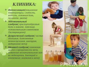 КЛИНИКА: Интоксикация(повышение температуры, слабость, вялость, головная боль, т