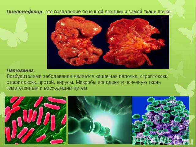 Пиелонефтир- это воспаление почечной лоханки и самой ткани почки. Патогенез. Возбудителями заболевания является кишечная палочка, стрептококк, стафилококк, протей, вирусы. Микробы попадают в почечную ткань гематогенным и восходящим путем.