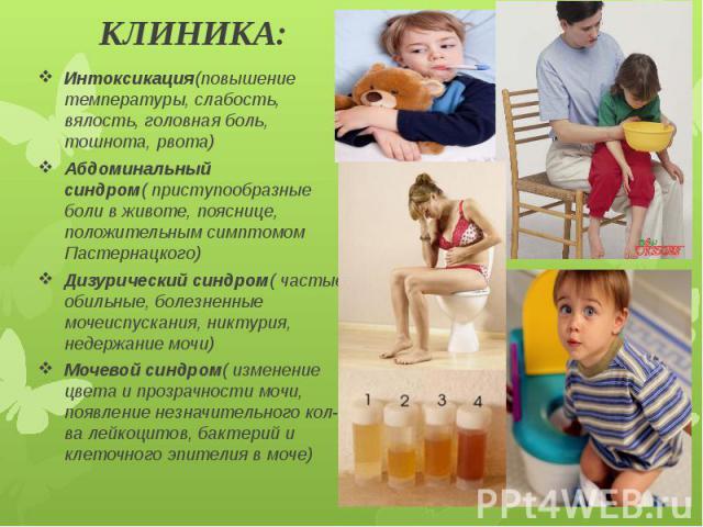 КЛИНИКА: Интоксикация(повышение температуры, слабость, вялость, головная боль, тошнота, рвота) Абдоминальный синдром( приступообразные боли в животе, пояснице, положительным симптомом Пастернацкого) Дизурический синдром( частые, обильные, болезненны…