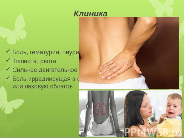 Клиника Боль, гематурия, пиурия Тошнота, рвота Сильное двигательное беспокойство Боль иррадиирущая в область пупка или паховую область