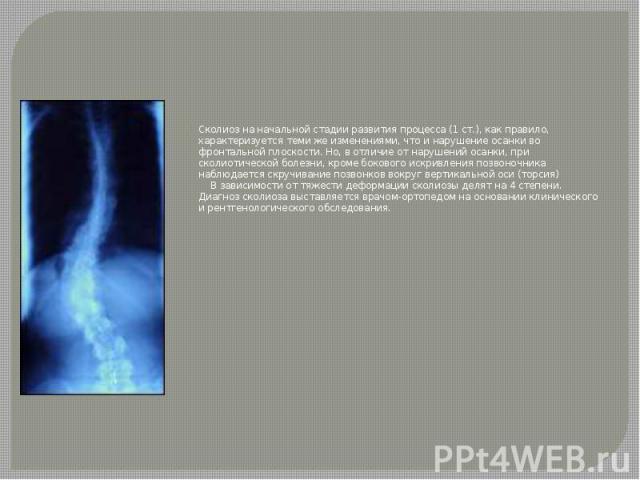 Сколиоз на начальной стадии развития процесса (1 ст.), как правило, характеризуется теми же изменениями, что и нарушение осанки во фронтальной плоскости. Но, в отличие от нарушений осанки, при сколиотической болезни, кроме бокового искривления позво…