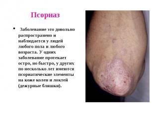 Псориаз Заболевание это довольно распространено и наблюдается у людей любого пол
