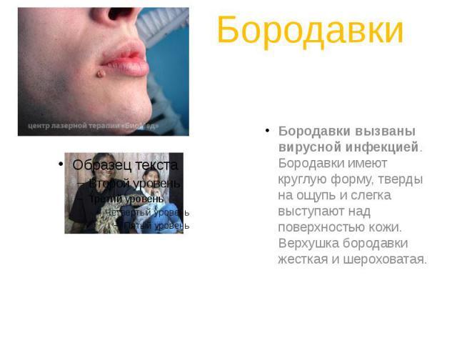 Бородавки Бородавки вызваны вирусной инфекцией. Бородавки имеют круглую форму, тверды на ощупь и слегка выступают над поверхностью кожи. Верхушка бородавки жесткая и шероховатая.