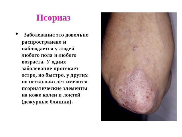 Псориаз Заболевание это довольно распространено и наблюдается у людей любого пола и любого возраста. У одних заболевание протекает остро, но быстро, у других по несколько лет имеются псориатические элементы на коже колен и локтей (дежурные бляшки).