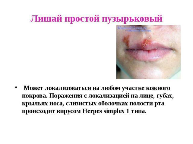 Лишай простой пузырьковый Может локализоваться на любом участке кожного покрова. Поражения с локализацией на лице, губах, крыльях носа, слизистых оболочках полости рта происходит вирусом Herpes simplex 1 типа.