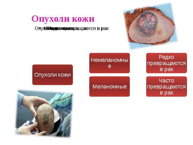 Опухоли кожи