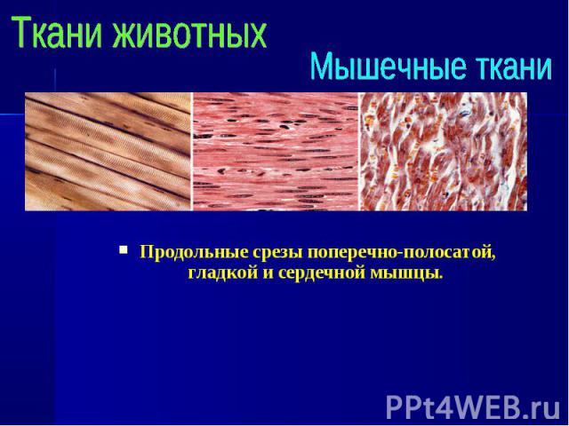 Продольные срезы поперечно-полосатой, гладкой и сердечной мышцы. Продольные срезы поперечно-полосатой, гладкой и сердечной мышцы.