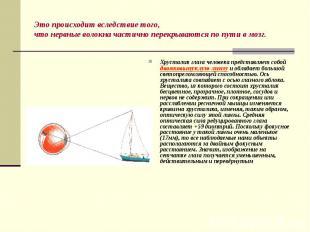 Хрусталик глаза человека представляет собой двояковыпуклую линзу и обладает боль