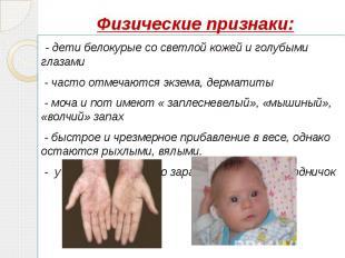 Физические признаки: - дети белокурые со светлой кожей и голубыми глазами - част