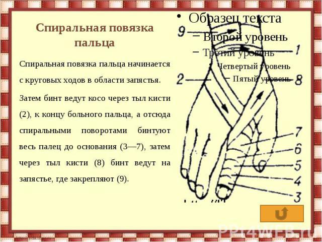 Спиральная повязка пальца Спиральная повязка пальца начинается с круговых ходов в области запястья. Затем бинт ведут косо через тыл кисти (2), к концу больного пальца, а отсюда спиральными поворотами бинтуют весь палец до основания (3—7), затем чере…