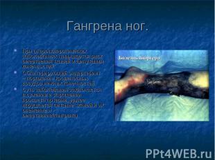 При атеросклеротических заболеваниях повышается риск омертвения тканей и ампутац