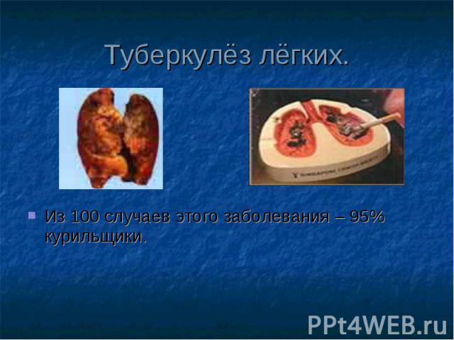 Из 100 случаев этого заболевания – 95% курильщики. Из 100 случаев этого заболевания – 95% курильщики.