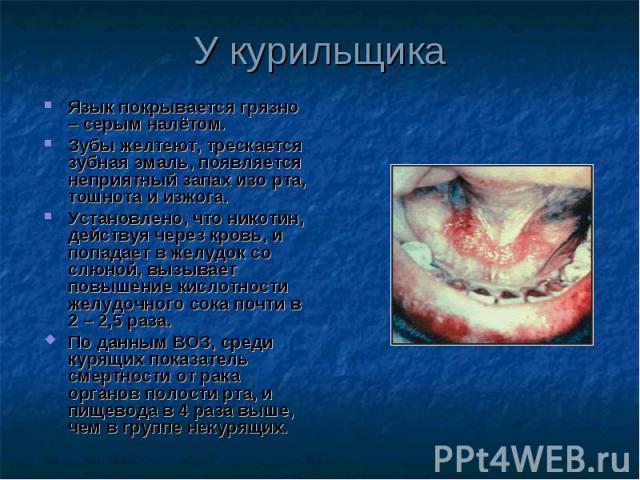 Язык покрывается грязно – серым налётом. Язык покрывается грязно – серым налётом. Зубы желтеют, трескается зубная эмаль, появляется неприятный запах изо рта, тошнота и изжога. Установлено, что никотин, действуя через кровь, и попадает в желудок со с…