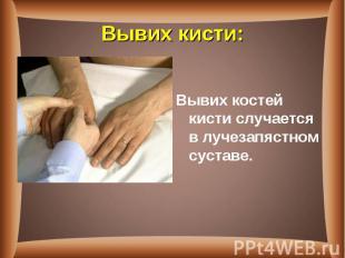 Вывих костей кистислучается в лучезапястном суставе. Вывих костей кисти&nb