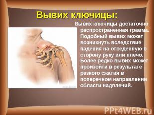 Вывих ключицыдостаточно распространенная травма. Подобный вывих может возн