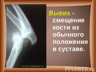 Вывих - смещение кости из обычного положения в суставе. Вывих - смещение кости и