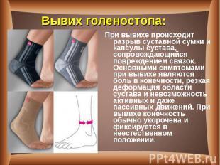 При вывихе происходит разрыв суставной сумки и капсулы сустава, сопровождающийся