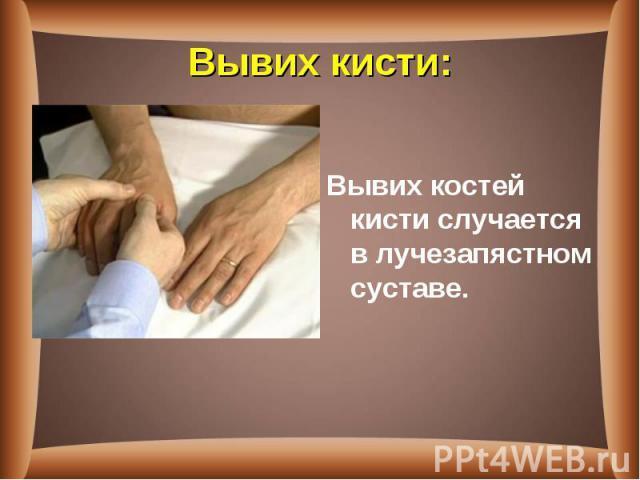 Вывих костей кистислучается в лучезапястном суставе. Вывих костей кистислучается в лучезапястном суставе.