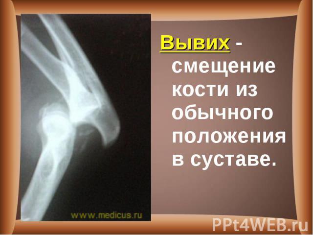 Вывих - смещение кости из обычного положения в суставе. Вывих - смещение кости из обычного положения в суставе.