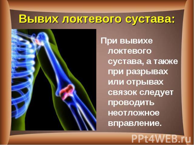 При вывихе локтевого сустава, а также при разрывах или отрывах связок следует проводить неотложное вправление. При вывихе локтевого сустава, а также при разрывах или отрывах связок следует проводить неотложное вправление.