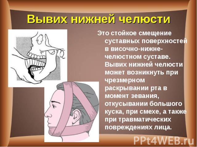 Это стойкое смещение суставных поверхностей в височно-нижне-челюстном суставе. Вывих нижней челюсти может возникнуть при чрезмерном раскрывании рта в момент зевания, откусывании большого куска, при смехе, а также при травматических повреждениях лица…
