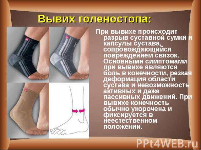 При вывихе происходит разрыв суставной сумки и капсулы сустава, сопровождающийся повреждением связок. Основными симптомами при вывихе являются боль в конечности, резкая деформация области сустава и невозможность активных и даже пассивных движений. П…