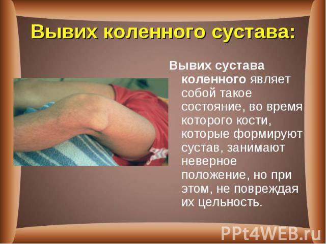 Вывих сустава коленногоявляет собой такое состояние, во время которого кости, которые формируют сустав, занимают неверное положение, но при этом, не повреждая их цельность. Вывих сустава коленногоявляет собой такое состояние, во время ко…