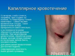 Если кровь слабо сочится, например, при ссадине на коленке, то повреждены только