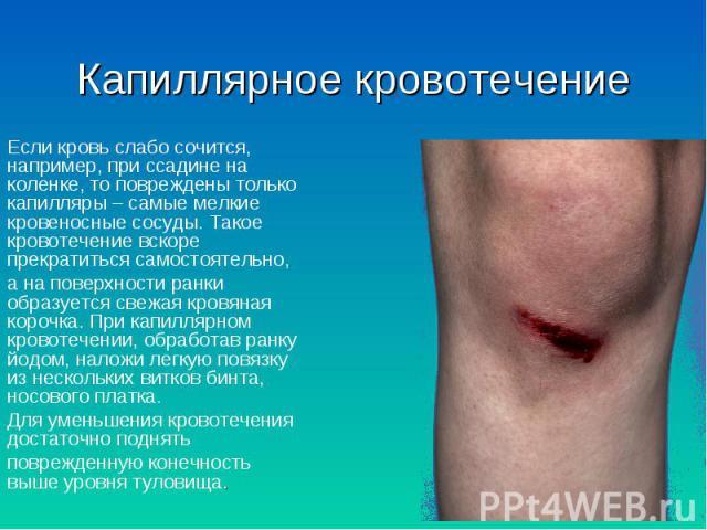 Если кровь слабо сочится, например, при ссадине на коленке, то повреждены только капилляры – самые мелкие кровеносные сосуды. Такое кровотечение вскоре прекратиться самостоятельно, Если кровь слабо сочится, например, при ссадине на коленке, то повре…