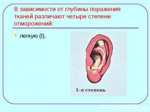 легкую (I), легкую (I),
