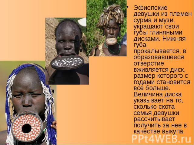 Эфиопские девушки из племен сурма и музи, украшают свои губы глиняными дисками. Нижняя губа прокалывается, в образовавшееся отверстие вживляется диск, размер которого с годами становится все больше. Величина диска указывает на то, сколько скота семь…
