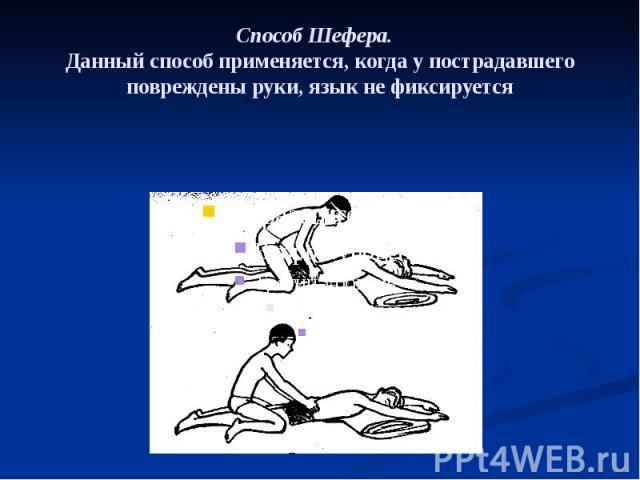 Способ Шефера. Данный способ применяется, когда у пострадавшего повреждены руки, язык не фиксируется