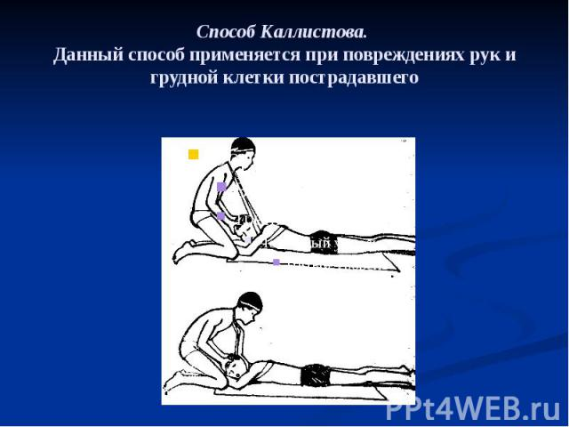 Способ Каллистова. Данный способ применяется при повреждениях рук и грудной клетки пострадавшего